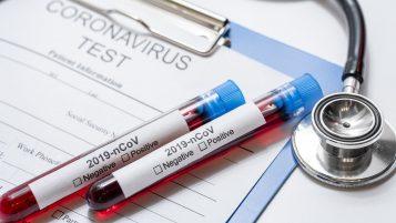 Koronawirus - testy